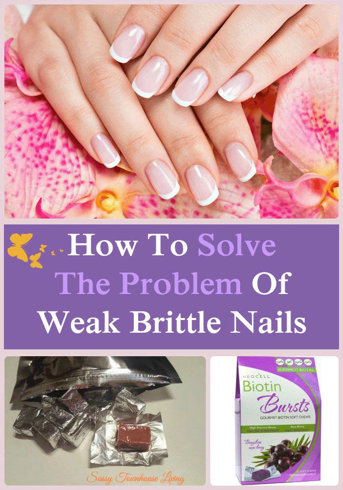 How To Solve The Problem Of Weak Brittle Nails - Sassy Townhouse Living