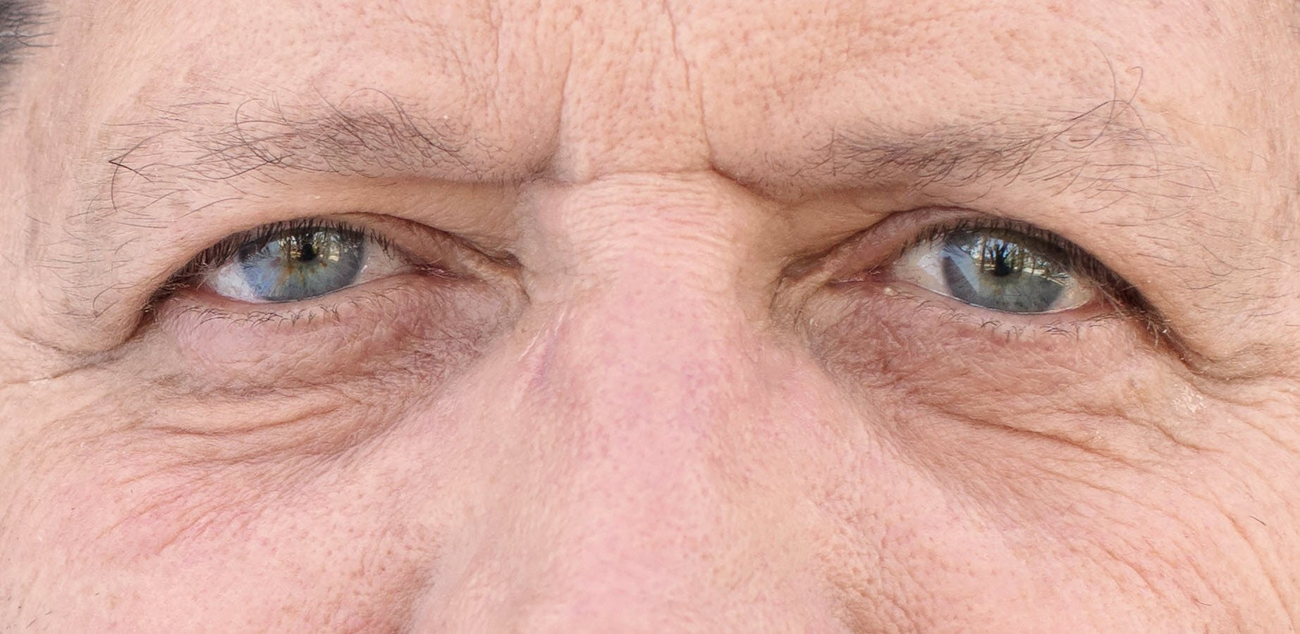 men's eyebrow thinning