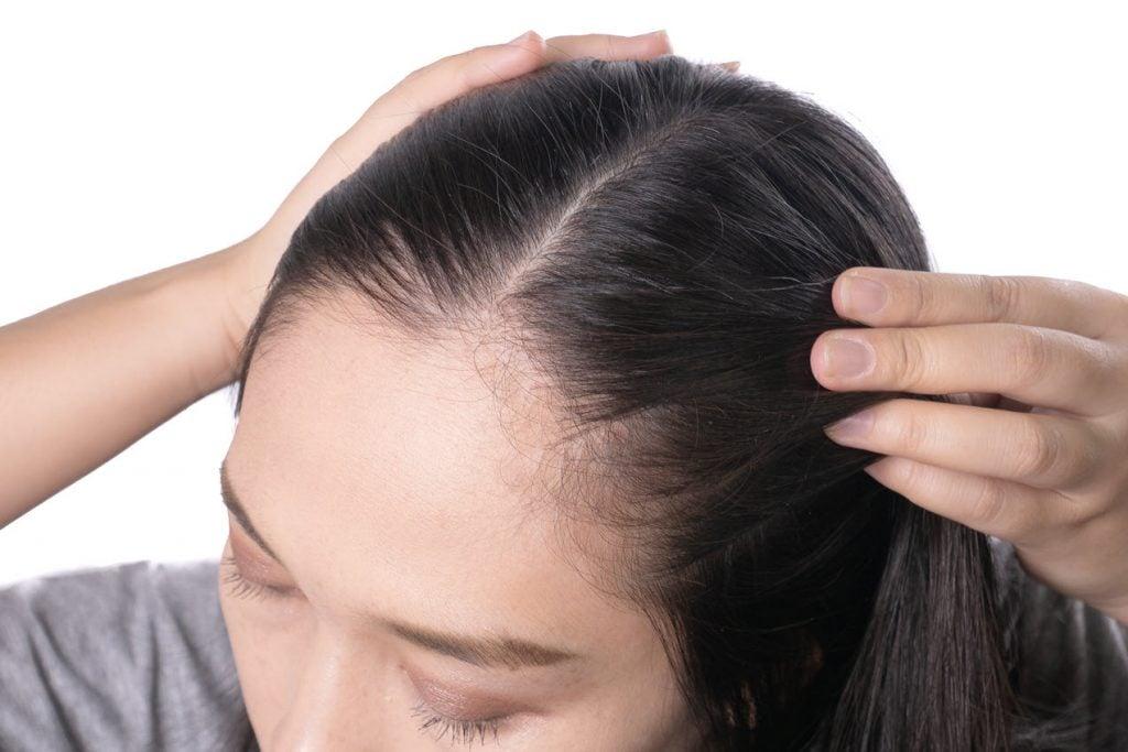 hair loss facelift