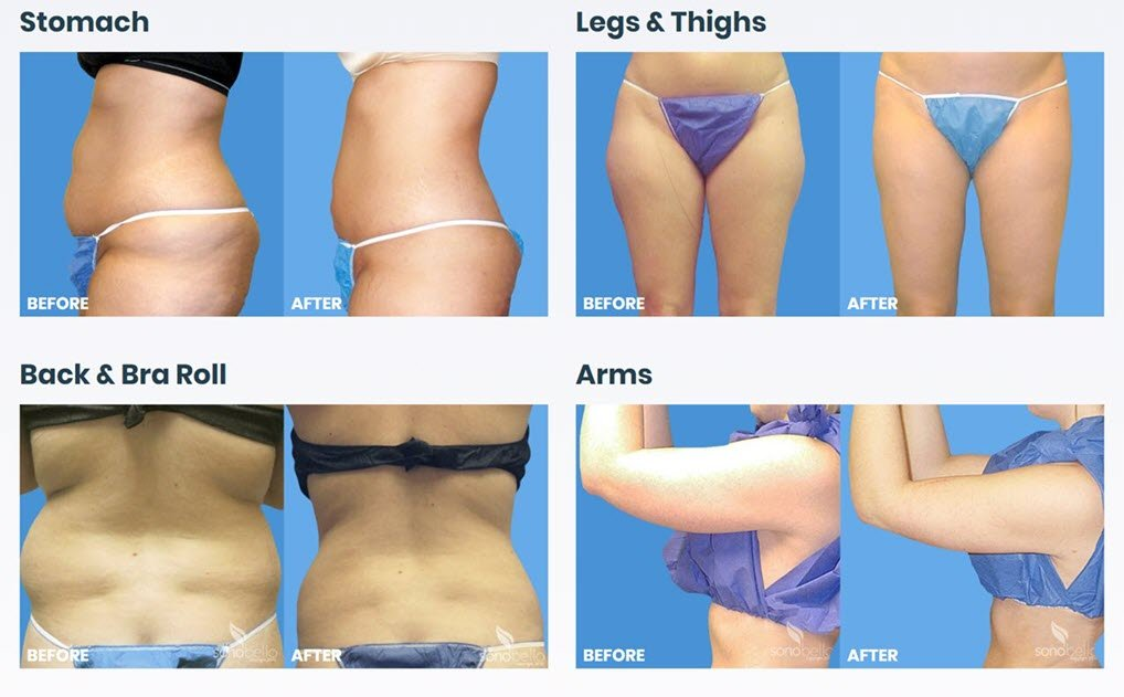 Trisculpt Micro-Laser Liposuction