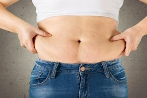 Trisculpt Micro-Laser Liposuction - 10 Things You Need To Know!