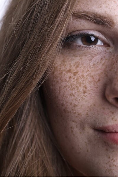 What is Hyperpigmentation And What Can I Do About It?