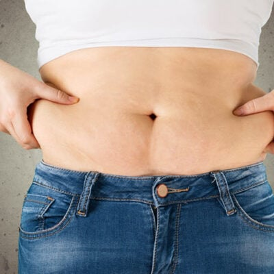 Micro Laser Liposuction - 10 Things You Need To Know FEATURED